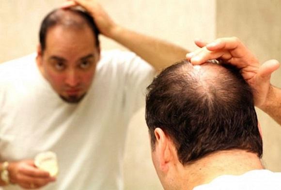 薄毛で悩む男性